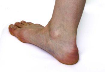 heel-spur_cropped